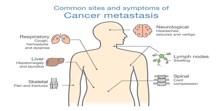 cancer metastasis