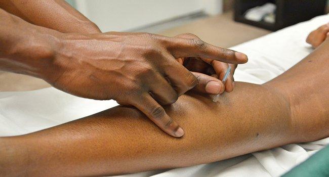 acupuncture heals arthritis
