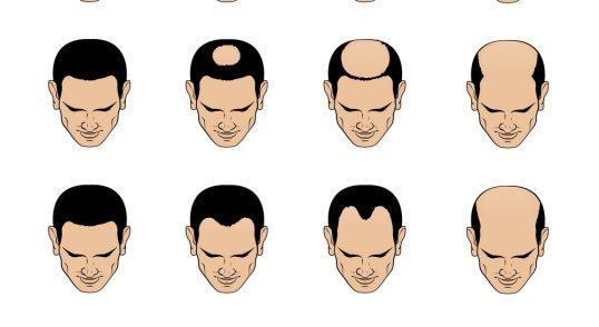 male pattern loss