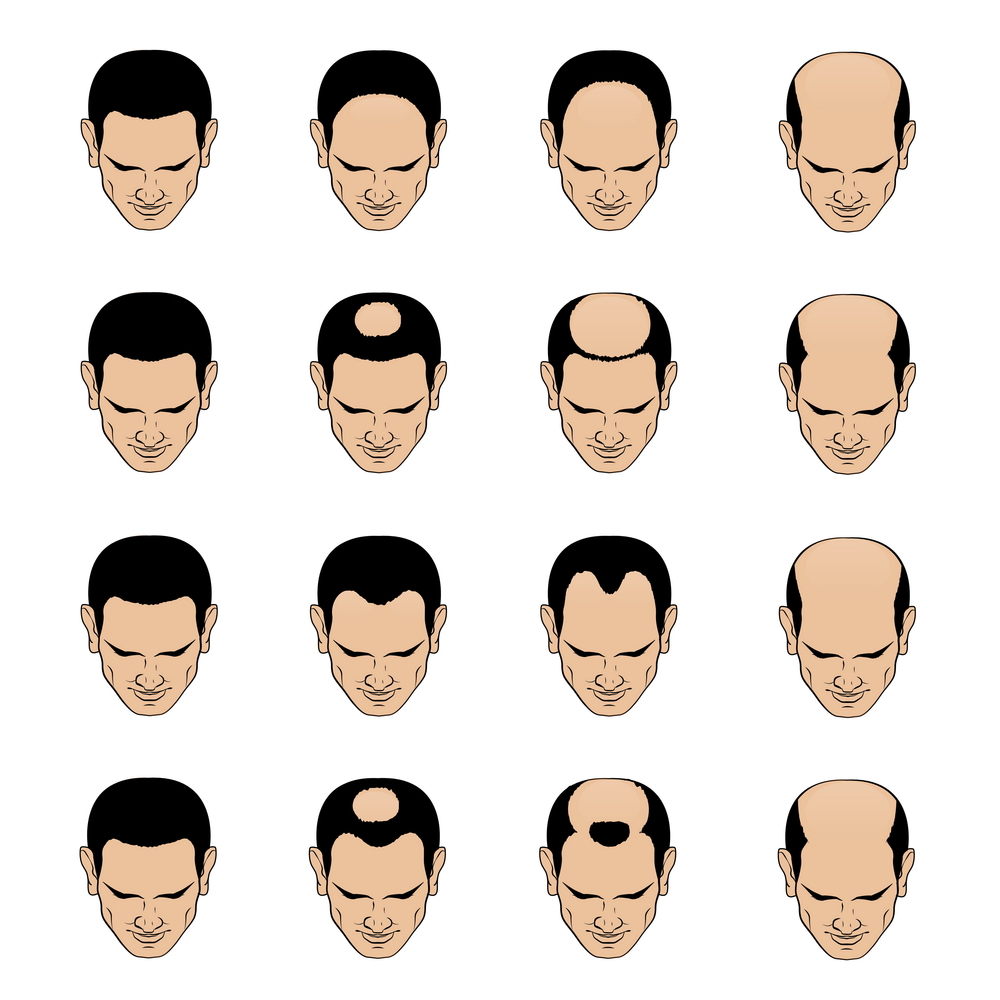 male pattern loss